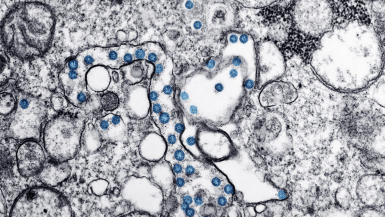 Transmission electron microscopic image of an isolate from the first U.S. case of COVID-19, formerly known as 2019-nCoV. The spherical viral particles, colorized blue, contain cross-sections through the viral genome, seen as black dots. (CDC/ Hannah A Bullock; Azaibi Tamin)